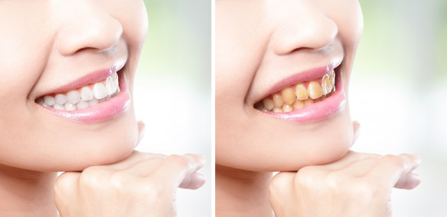 烟牙洗牙能变白吗可以怎么办呢